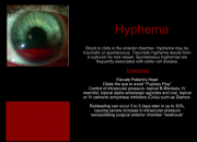 External Signs of Internal Trauma Hyphema
