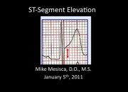 Mike Mesisca St Elevation